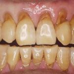 歯の根っこが茶色くなってきたのは歯周病でしょうか?